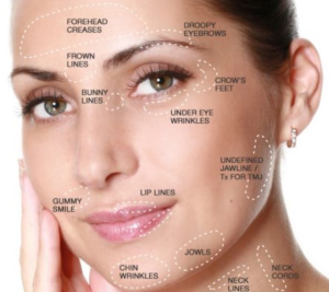 Botox Injections – Here's a Knowhow